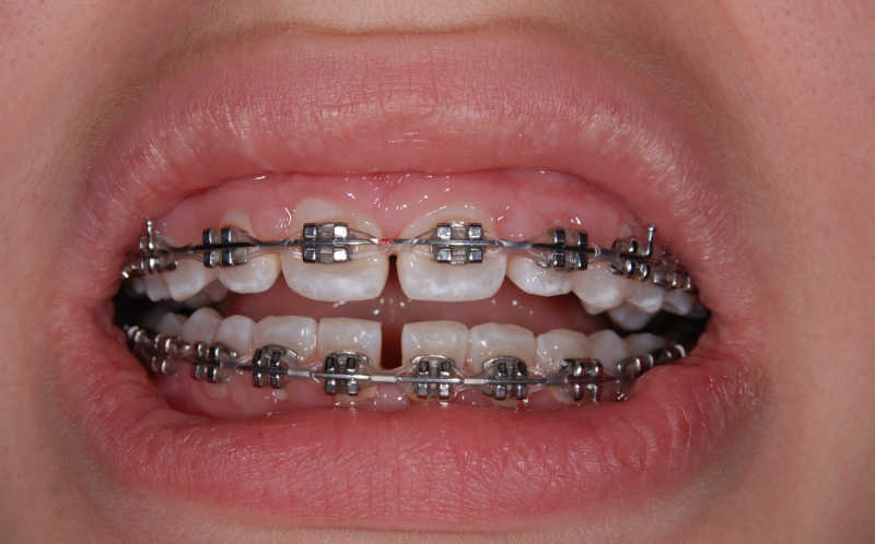 Dental Brace Malta - Orthodontics | Demajo Dental