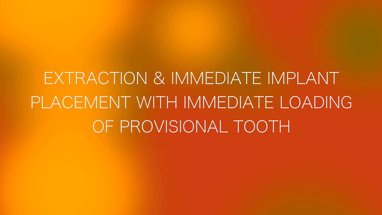 Extraction & Immediate Implant Placement with Immediate Loading of Provisional Tooth
