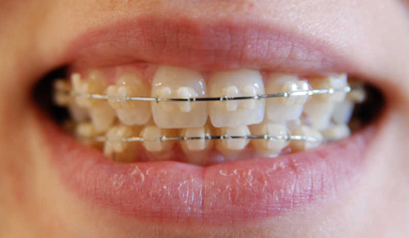 Orthodontics Braces