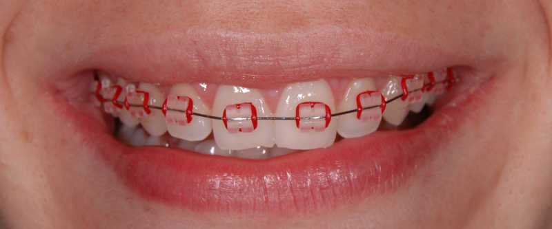 how to eat with rubber bands on braces