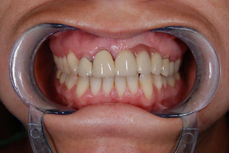 Dental Fixed Bridges